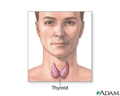 Thyroid Nodule Woman Care