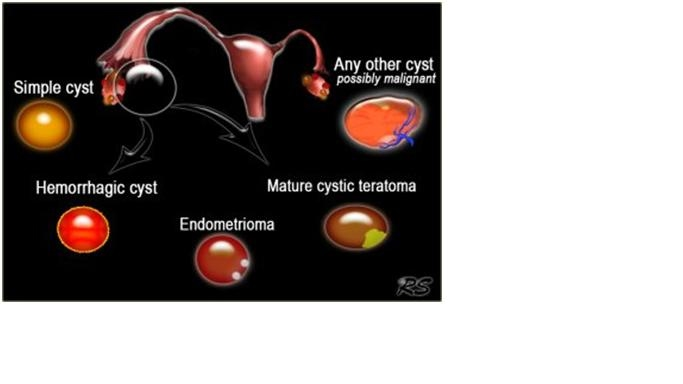 are ovarian cysts normal