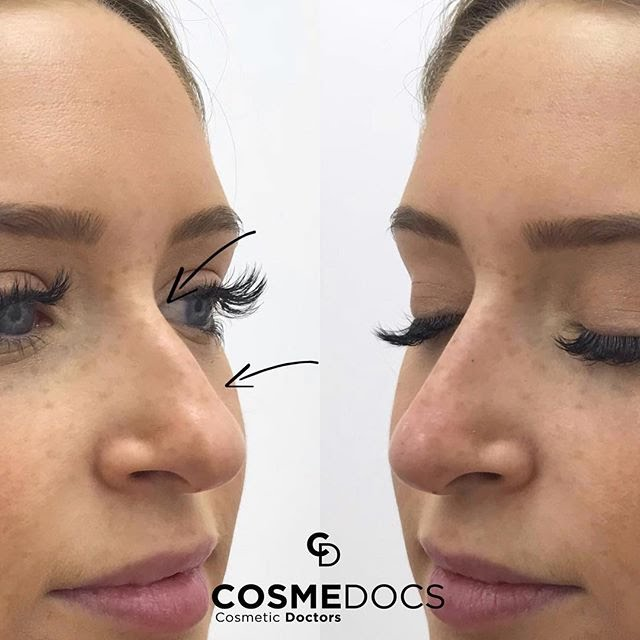 Improve Your Nasal Functions With Surgical Rhinoplast Non Surgical Cosmetic