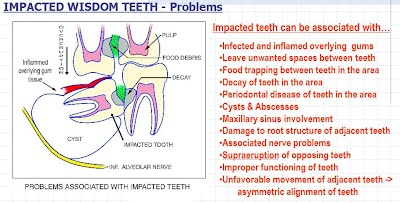 What causes a wisdom tooth infection?