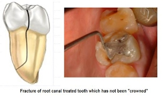 molar root canals