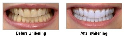 Teeth Whitening / Bleaching