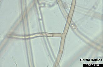 Mycelia Sterilia, meaning and definition - ixi dictionary and ...