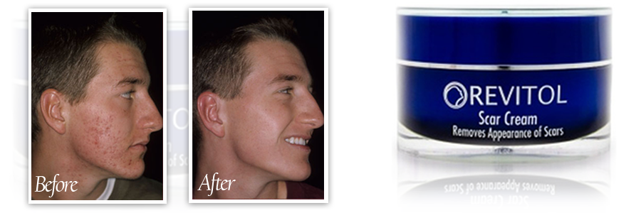 Revitol Scar Cream Revitol Canada