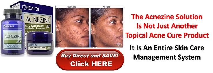Revitol Acnezine Acne Cream Revitol Canada