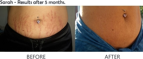 Revitol Stretch Mark Cream In Canada Revitol Canada