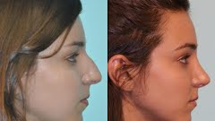 Rhinoplasty Before And After Rhinoplasty Plano