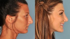 Nose Job Recovery Time Rhinoplasty Plano