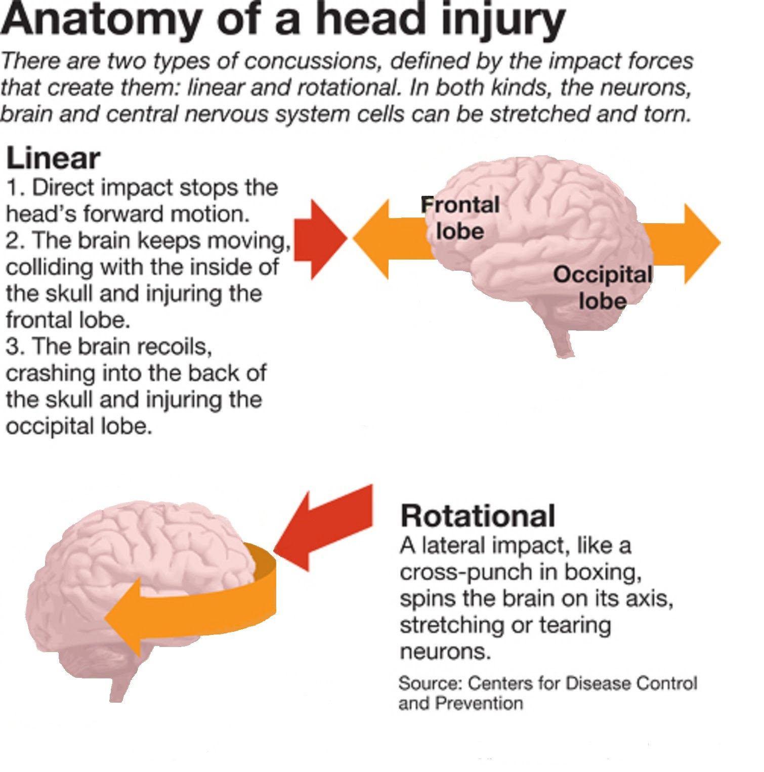 Concussions - Roseburg High School Sports Medicine