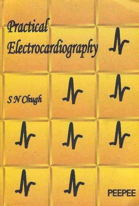 Practical Electrocardiography ECG EKG by SN Chugh- Peepee Publishers