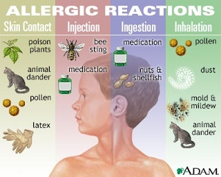Picture of Allergic Reactions