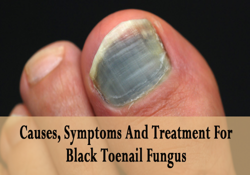 Causes, Symptoms And Treatment For Black Toenail Fungus - Best ...