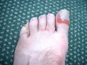 Know The Causes And Treatment Of Toenail Blisters