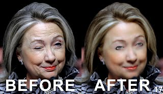 30120323 Hillary Clinton Face Lift Live Operating Room Video and Photo (Volatility Research) 1000w .jpeg