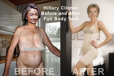 SHOCKING Hillary Clinton Before and After Full Body Tuck (Volatility Research) 1000w