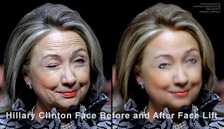 Hillary Clinton Face Before and After Face Lift (Volatility Research) 1000h
