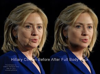 Hillary Clinton Before After Full Body Tuck  (Volatility Research) 1000h