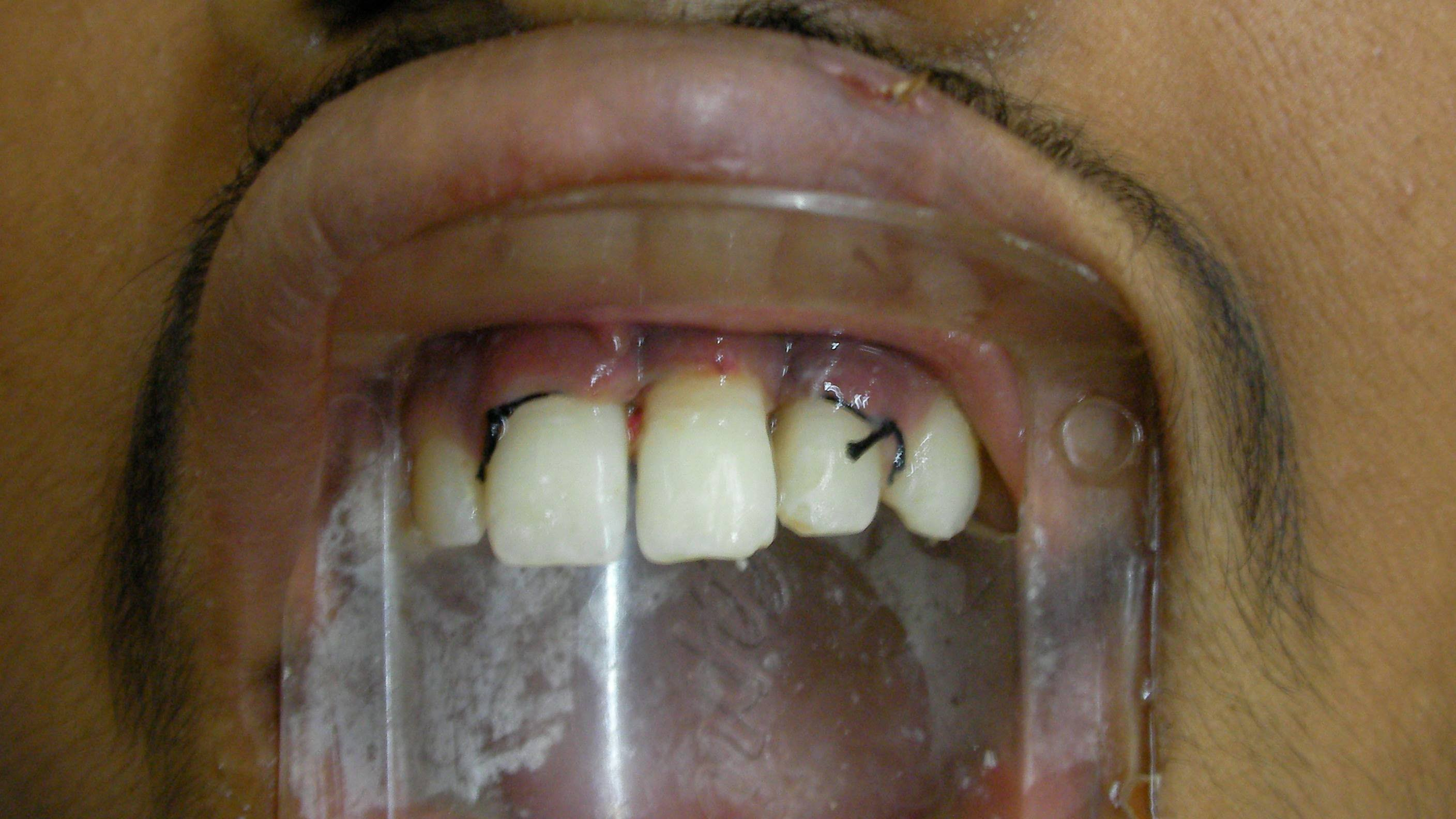 Natural Remedy For Broken Tooth